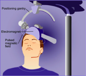 How transcranial magnetic stimulation is performed on a patient. Image from National Institute of Mental Health.