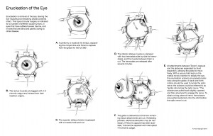 2011-08_Enucleation_Illustrator.jpg.pagespeed.ce.ZGJ8l0Wt0o