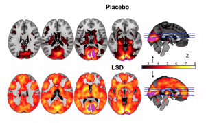This image shows different sections of the brain, the top row on placebo and the bottom row under the influence of LSD. The orange and red areas indicate a greater amount of neural activity in the LSD group. Photograph: Imperial/Beckley Foundation